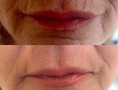 medycyna estetyczna usta