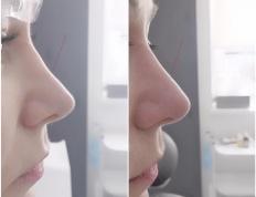 medycyna estetyczna nos