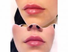 wypełnienie ust bielsko